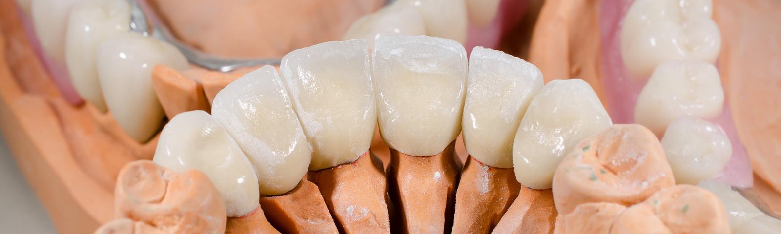 blaues zahnfleisch bei erwachsenen